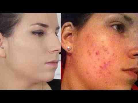 Comment se maquiller quand on a de l'acné ?
