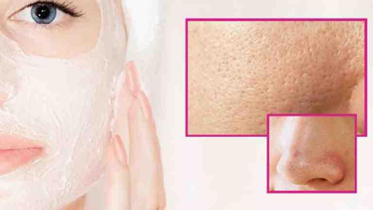 Quel fond de teint pour peau grasse et pores dilatés ?