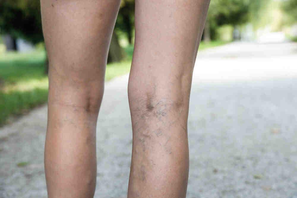Comment soulager la douleur des varices ?