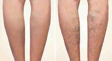 Quel maquillage pour les jambes ?